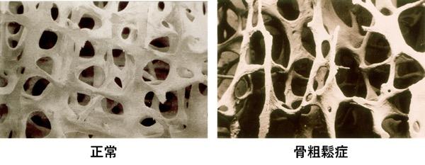 osteoporosis_img001