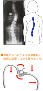 scoliosis_img003